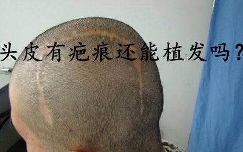 疤痕植发你了解吗,疤痕植发有什么是你所关心而不知道的