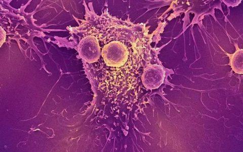 癌症的转移帮凶免疫细胞的叛变