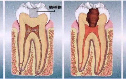 特殊纳米涂层,可保护口腔健康防治龋齿