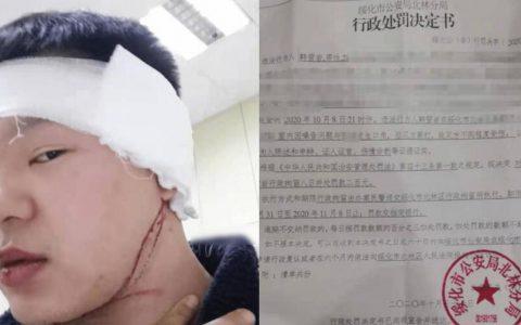 黑龙江一名男因提醒邻居夜半噪音遭暴打,网上申诉反被以行拘和被公司解职