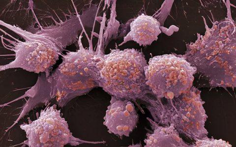陈根:开发三维肿瘤模型,个性化治癌再迈一步
