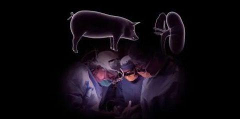 猪肾脏移植人体获成功,世界首例